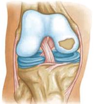 Повреждение хряща колена