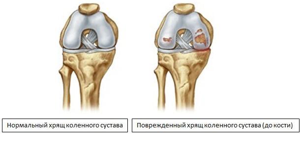 Стерлись хрящики в плечевом суставе чем лечить болезнь коленных суставов