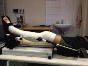 Лечение гонартроза после операции