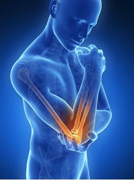 Локтевой артроз и артрит симптомы и лечение