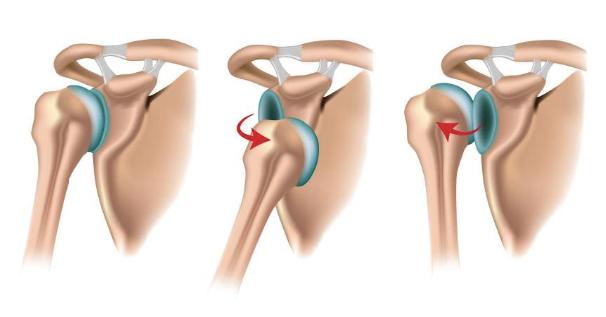 Причины такой травмы как привычный вывих плеча заключаются в нарушении слаженной работы окружающих его суставов, связок и сухожилий