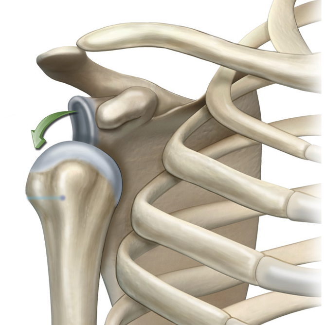 Привычный вывих плеча, симптомы и лечение